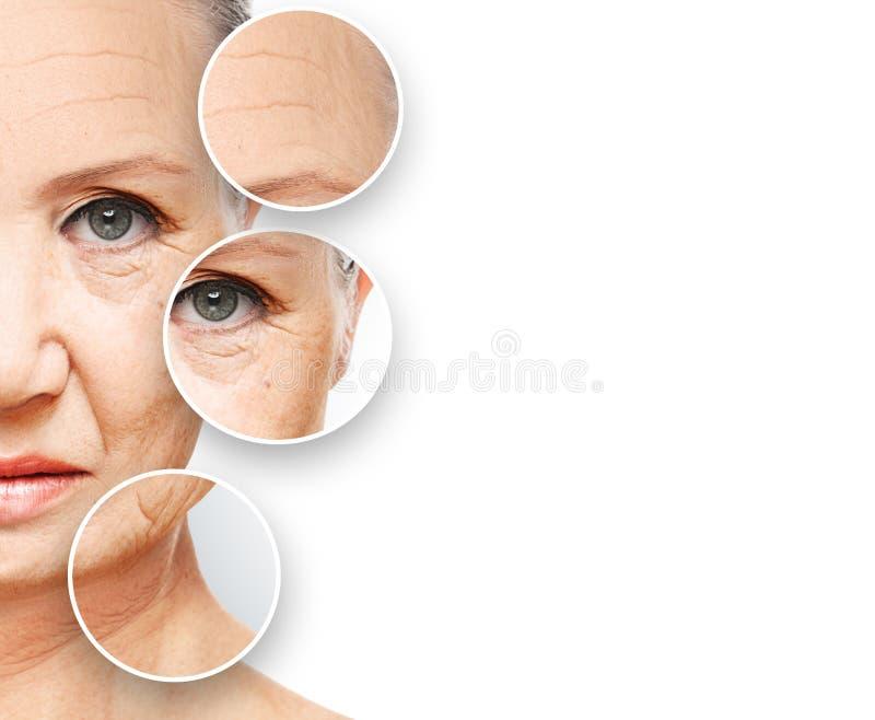 Åldras för skönhetbegreppshud anti--åldras tillvägagångssätt, föryngring och att lyfta, åtdragning av ansikts- hud royaltyfri fotografi