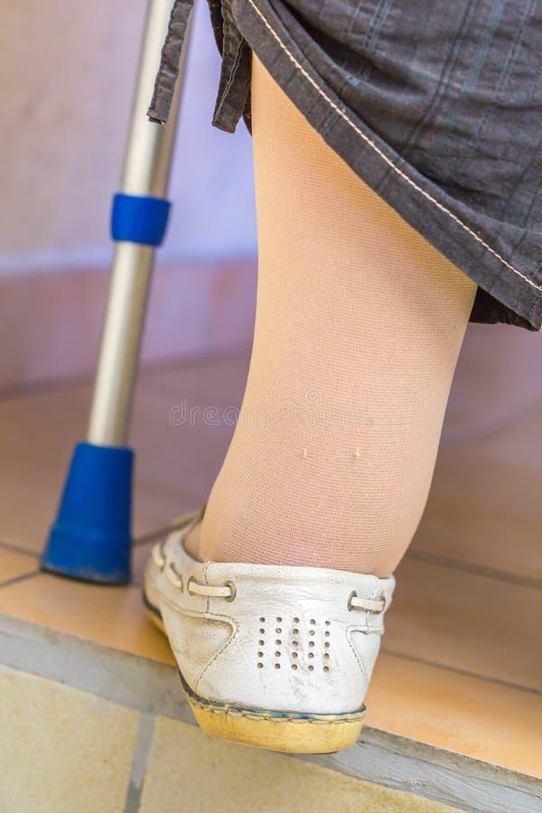 åldras kvinnan med strumpor för en kompression för krycka bärande royaltyfria bilder