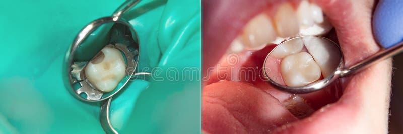 Återställande av tandnärbilden Begreppet av den estetiska treaen royaltyfri fotografi