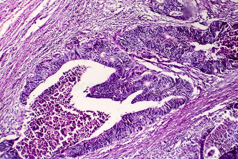 Åtskild inälvs- adenocarcinoma, ljus micrograph arkivbild