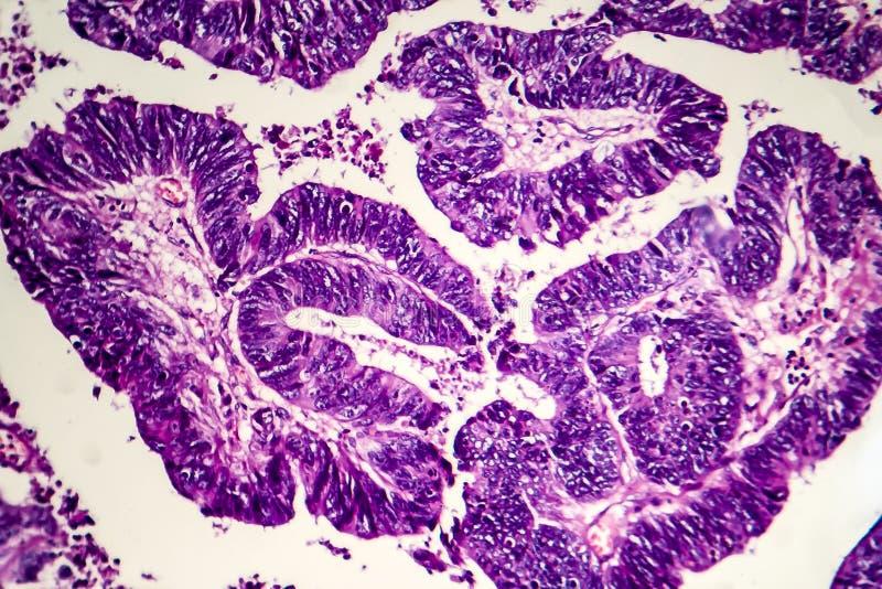 Åtskild inälvs- adenocarcinoma, ljus micrograph arkivfoton