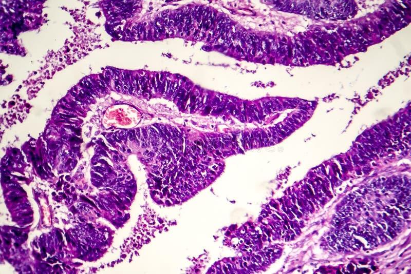 Åtskild inälvs- adenocarcinoma, ljus micrograph royaltyfria foton