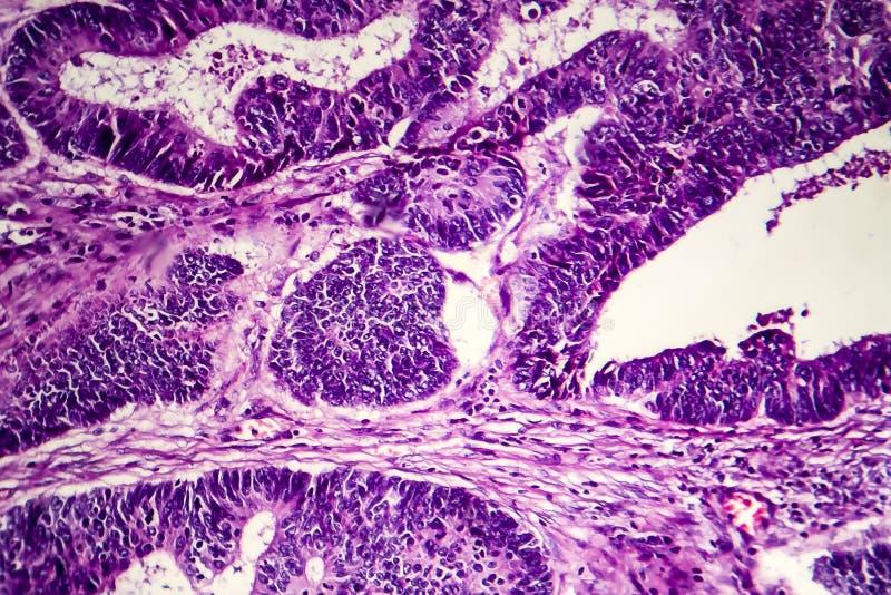 Åtskild inälvs- adenocarcinoma, ljus micrograph royaltyfri fotografi