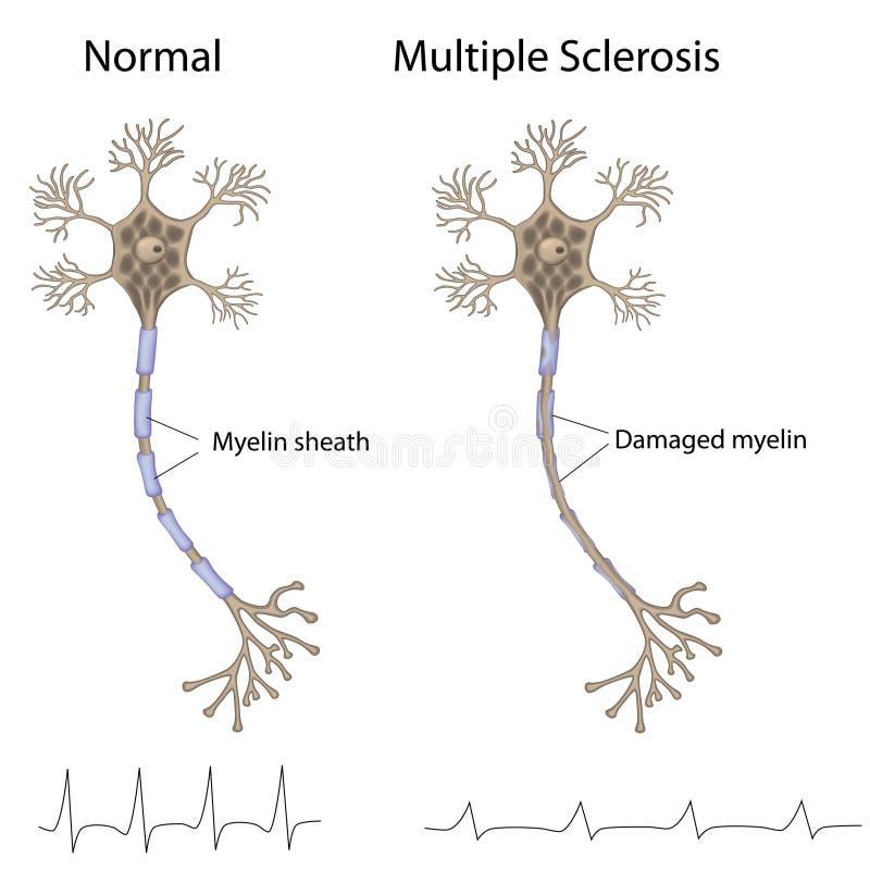 åtskillig sclerosis royaltyfri illustrationer