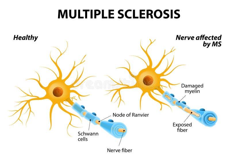 åtskillig sclerosis vektor illustrationer