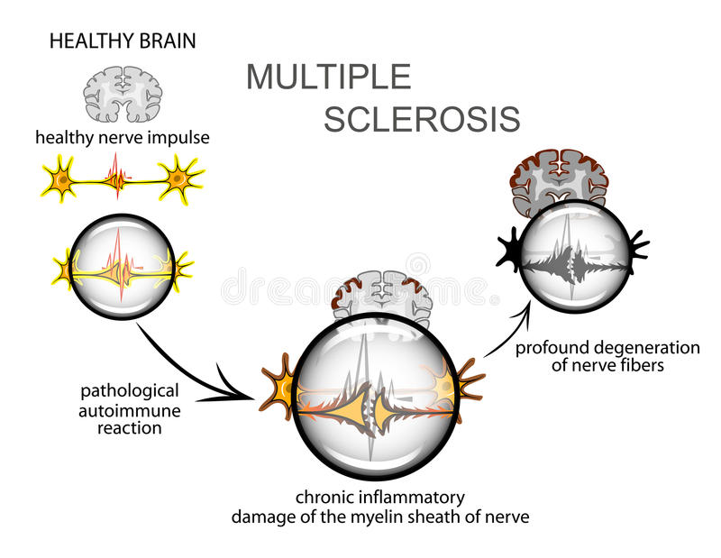 åtskillig sclerosis neurology vektor illustrationer