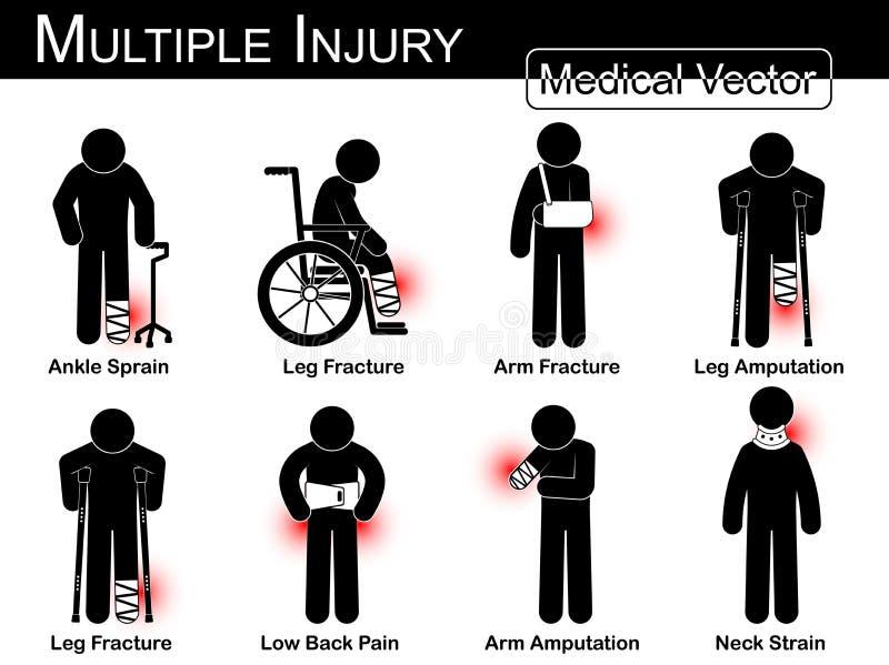 Åtskillig skadauppsättning (ankeln stukar, lägger benen på ryggen brott, beväpnar brott, lägger benen på ryggen amputationen, ben stock illustrationer