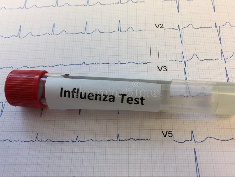 流感病毒测试的验血管 免版税图库摄影