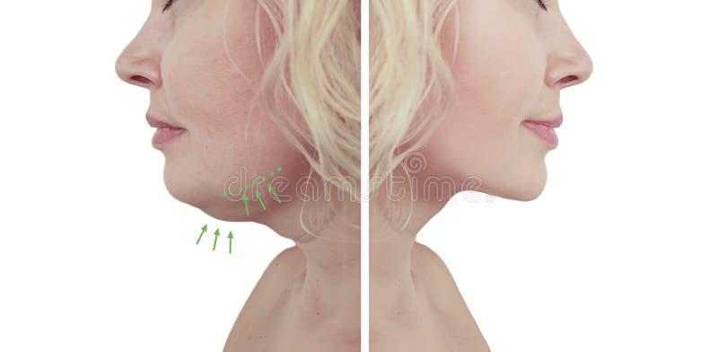 美女在皮下脂肪切除术做法前后的双下巴拼贴画 免版税图库摄影