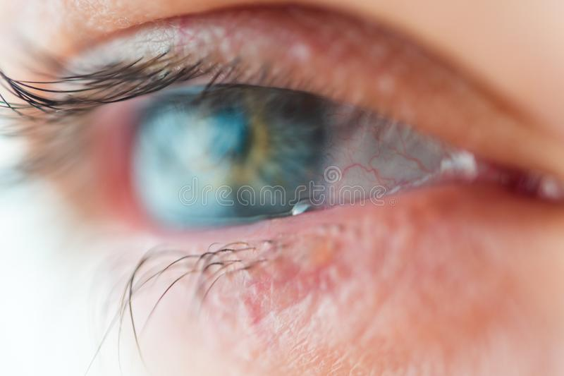 眼睛宏观视图的防护黏液影片 库存图片