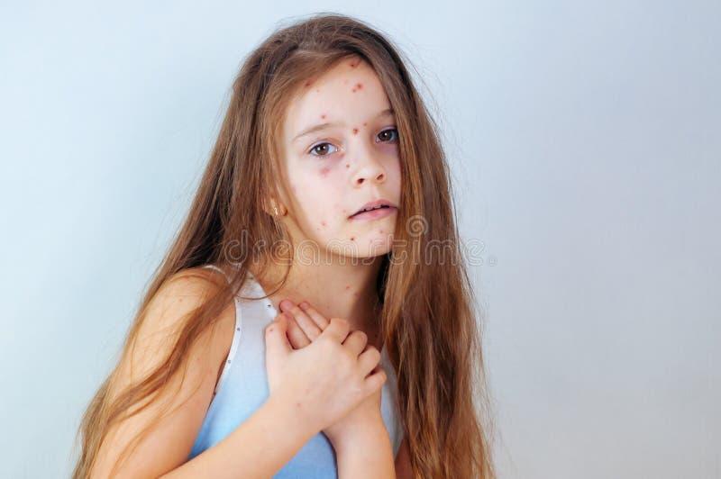 特写镜头逗人喜爱的女孩一点 水痘在孩子的病毒或水痘泡影疹 图库摄影