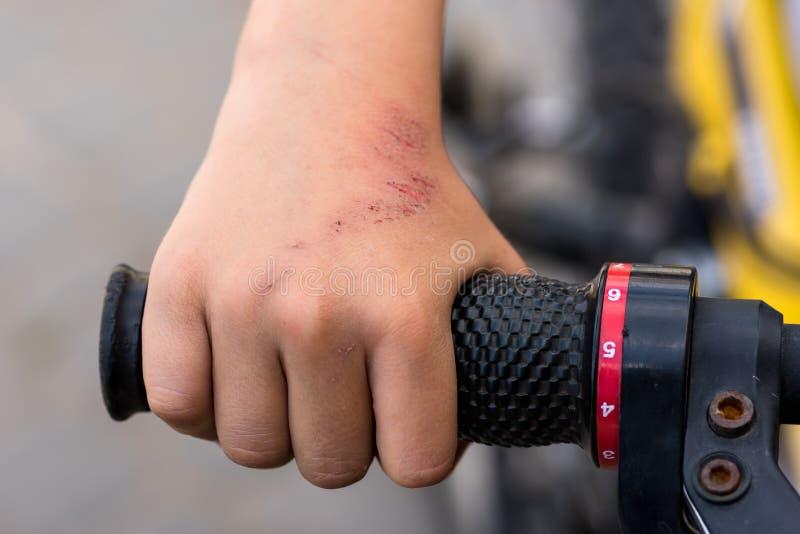 男孩,下落从自行车,受伤 免版税库存照片