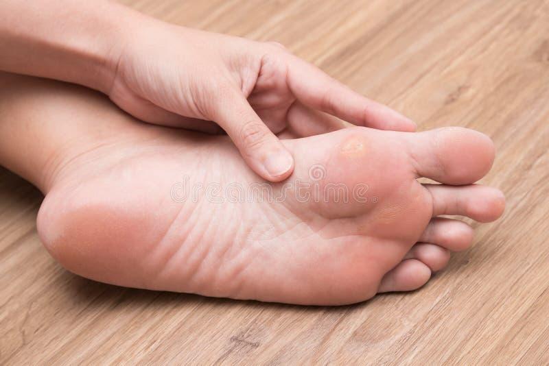 遭受在她的脚脚底的玉米的妇女 免版税库存照片