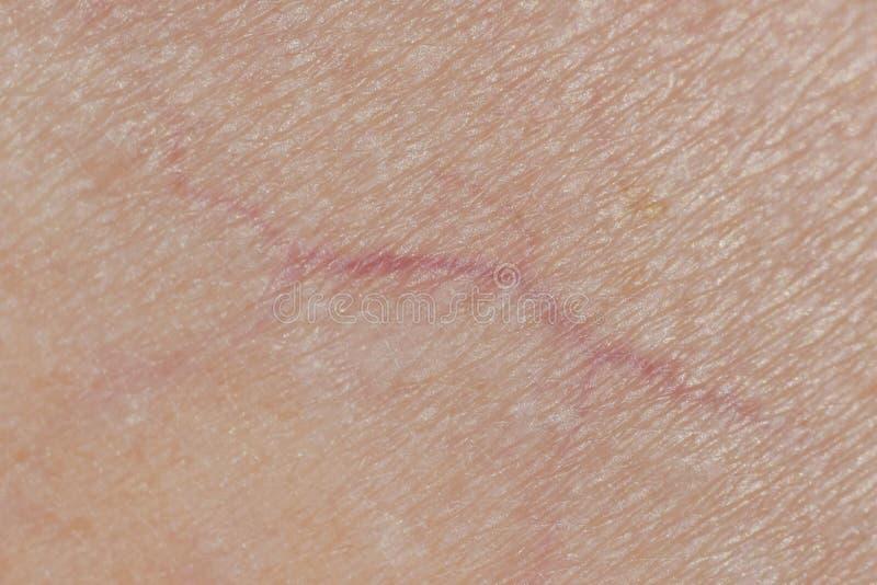 静脉宏观照片在人的皮肤,Microvarices的 免版税库存图片