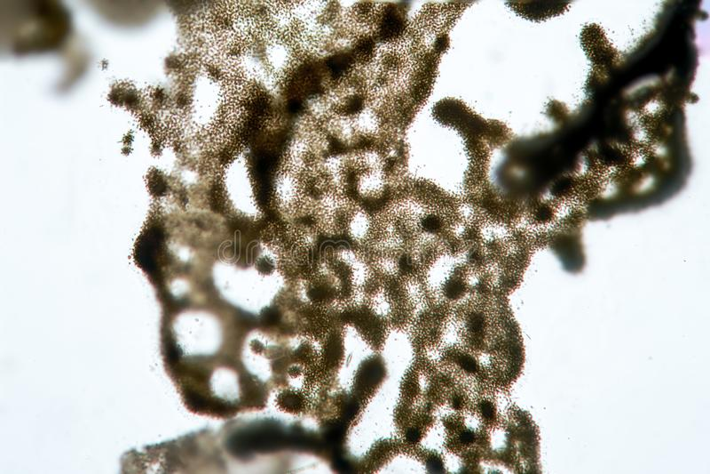 Ééncellige cyanobacteria van algenmicrocystis door microscoop Oorzaak van zoetwater algenachtige verontreiniging royalty-vrije stock afbeelding