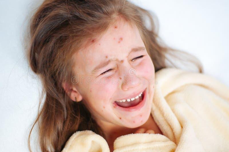 逗人喜爱的哀伤的哭泣的女孩特写镜头在床上 水痘在孩子的病毒或水痘泡影疹 库存照片