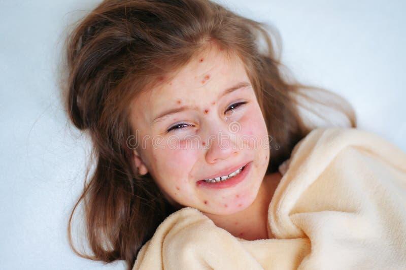逗人喜爱的哀伤的哭泣的女孩特写镜头在床上 水痘在孩子的病毒或水痘泡影疹 库存图片