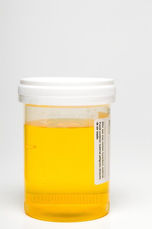 Échantillon d'urine photo libre de droits