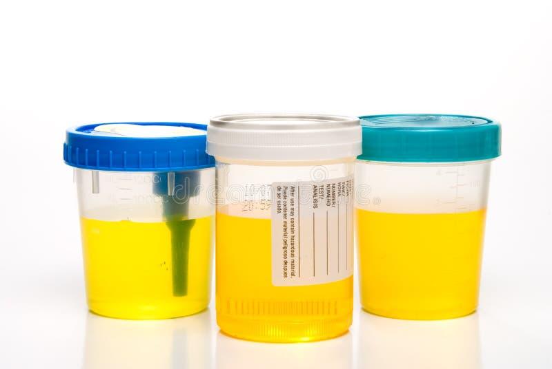 Échantillons d'urine photo libre de droits