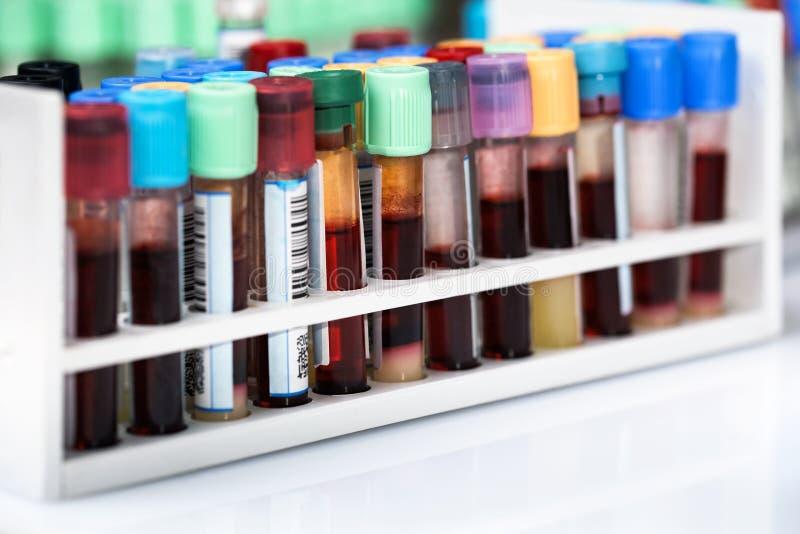 Échantillons de tubes de sang dans le plateau dans le laboratoire images libres de droits