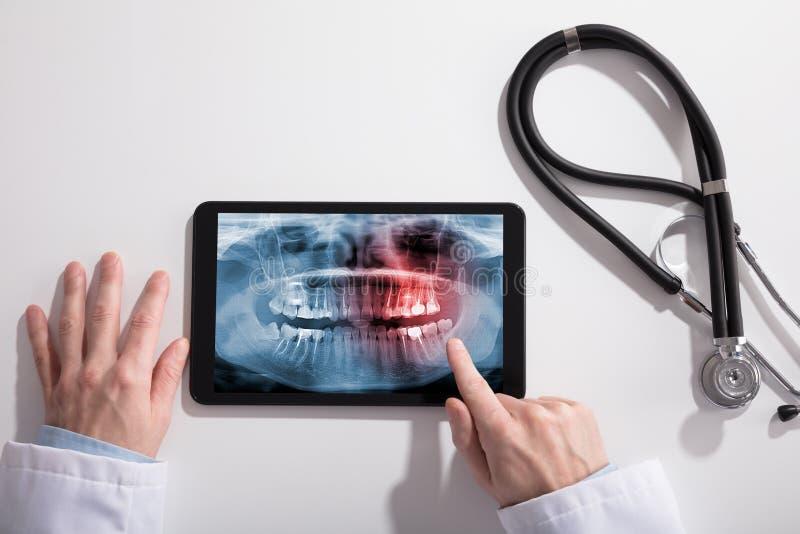 Écran de main du ` s de docteur et de Tablette de Digital montrant le rayon X de dents photo libre de droits