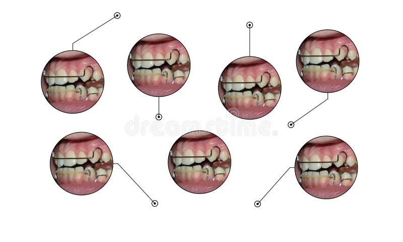Éléments infographic de légendes d'arrêtoir d'appareils dentaires illustration stock