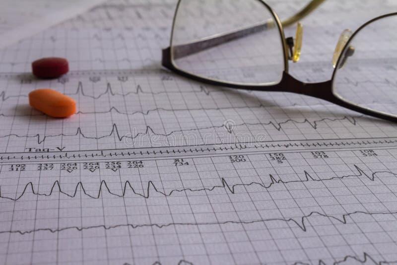 Éléments médicaux sur des bandes d'électrocardiogramme avec le battement de coeur Bureau médical montrant le concept de santé photos stock