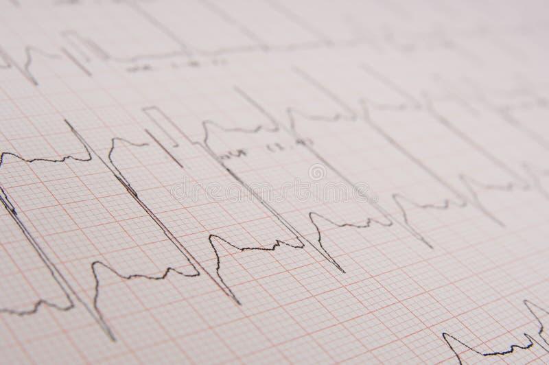 Électrocardiogramme photographie stock