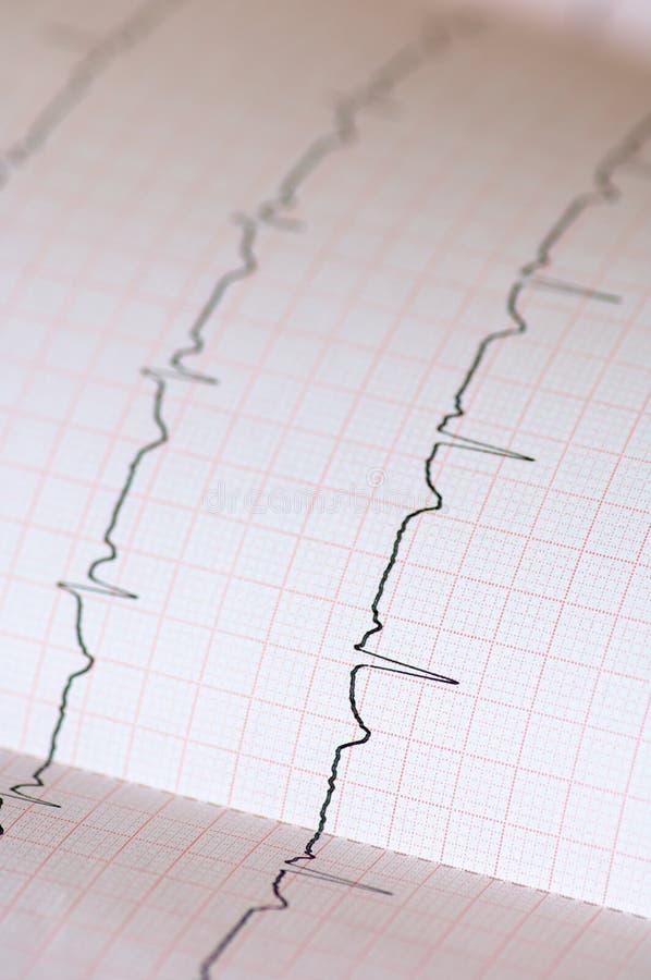 Électrocardiogramme photos stock