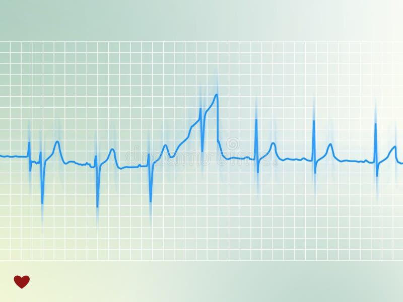 Électrocardiogramme illustration stock