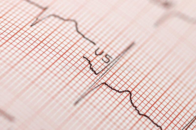 Électrocardiogramme dans la fin vers le haut images stock
