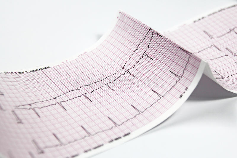 Électrocardiogramme, essai du coeur EKG image libre de droits