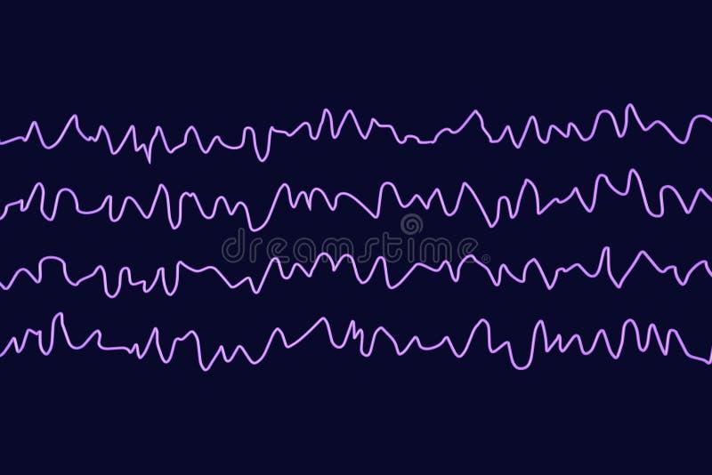 Électroencéphalogramme d'EEG, onde cérébrale dans l'état éveillé pendant le repos illustration stock