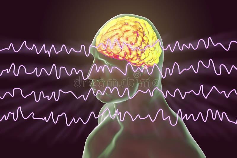 Électroencéphalogramme d'EEG, onde cérébrale dans l'état éveillé pendant le repos illustration libre de droits