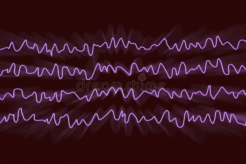 Électroencéphalogramme d'EEG, onde cérébrale dans l'état éveillé pendant le repos illustration de vecteur