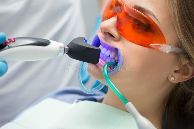 Émetteur à rayonnement ultraviolet remplissant de dent photographie stock libre de droits