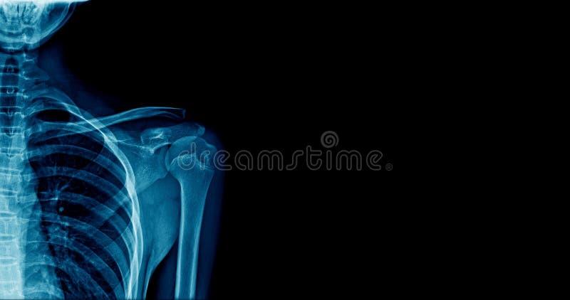 Épaule de rayon X de bannière photos libres de droits