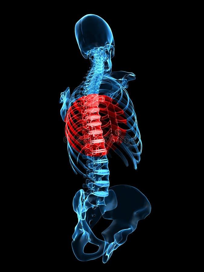 Épine humaine avec douleur illustration stock