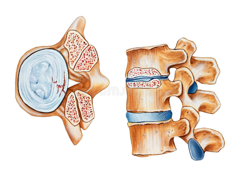 Épine - sténose spinale photos libres de droits