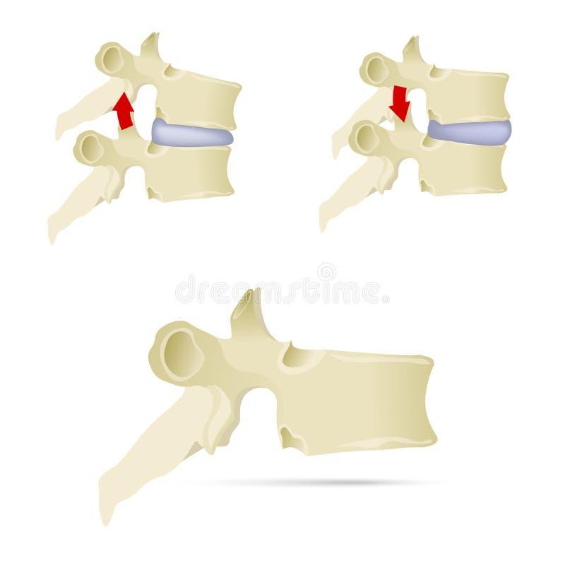 Épine, vertèbre lombaire Syndrome de facette, a uncovertebral avancé illustration de vecteur