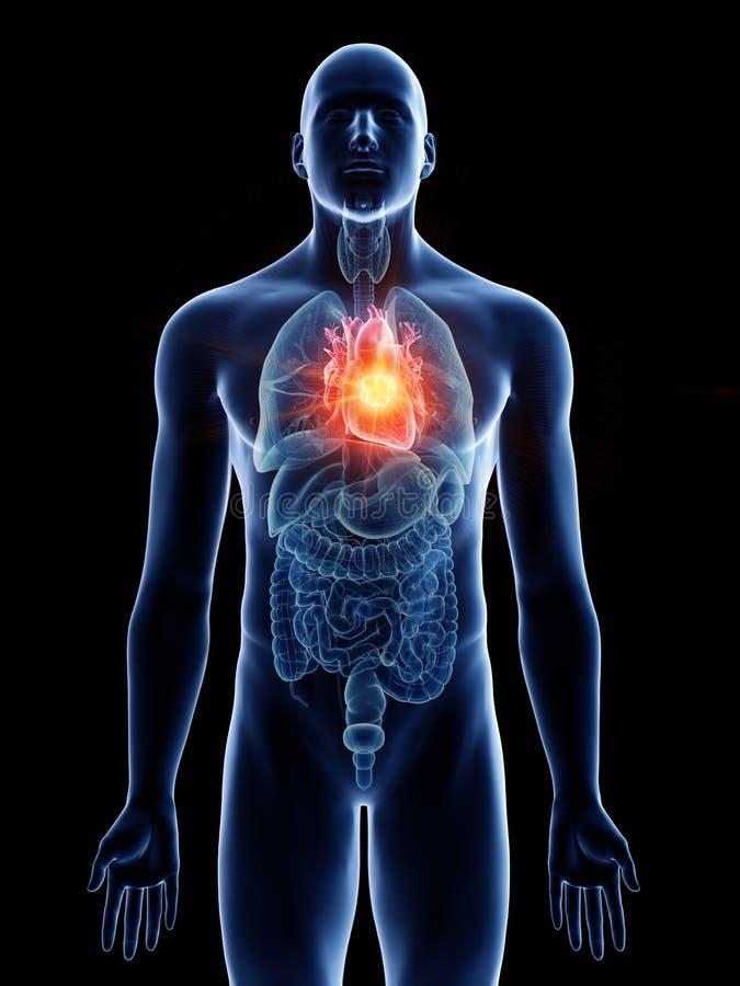 Équipe la tumeur de coeur illustration stock