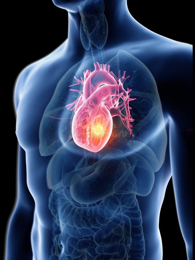 Équipe la tumeur de coeur illustration de vecteur