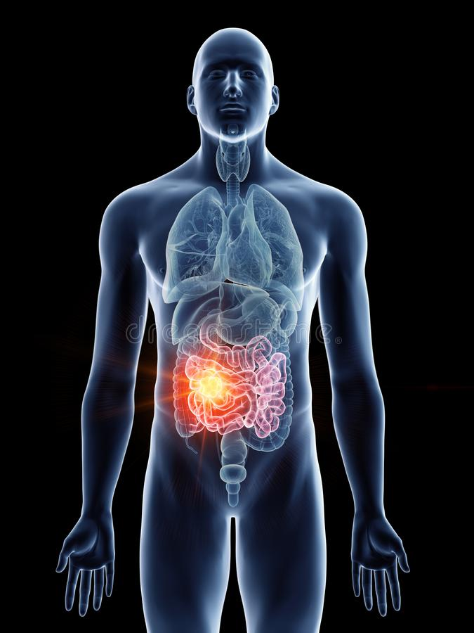 Équipe le cancer d'intestin grêle illustration de vecteur