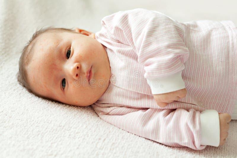 Éruption hormonale des nouveaux-nés image libre de droits