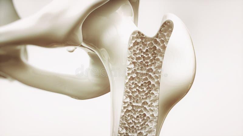Étape 4 d'ostéoporose du rendu 4 - os supérieur de membre - 3d illustration stock
