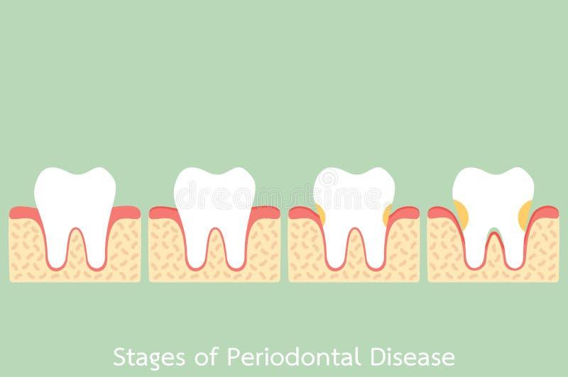 Étape de la maladie parodontale/du periodontitis/de gingivite/de maladie des gencives, problème dentaire illustration de vecteur