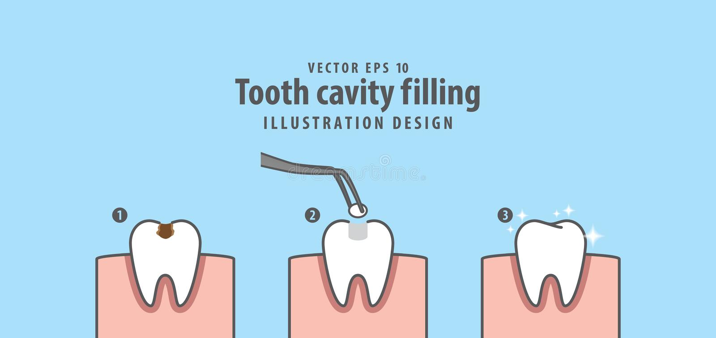 Étape de vecteur remplissant d'illustration de cavité de dent sur le backgro bleu illustration de vecteur