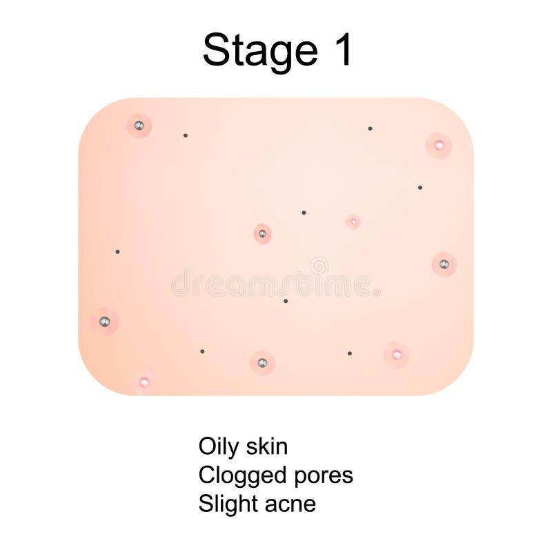 Étape 1 du développement de l'acné Peau enflammée avec les cicatrices, l'acné et les boutons La texture de la peau enflammée, et  illustration stock