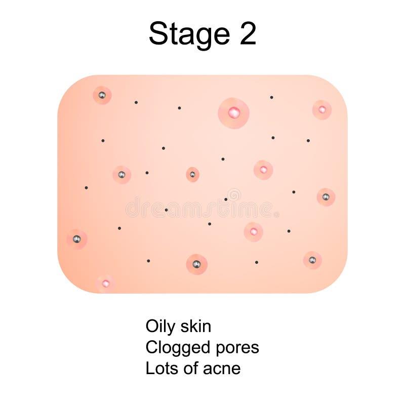 Étape 2 du développement de l'acné Peau enflammée avec les cicatrices, l'acné et les boutons La texture de la peau enflammée, et  illustration de vecteur