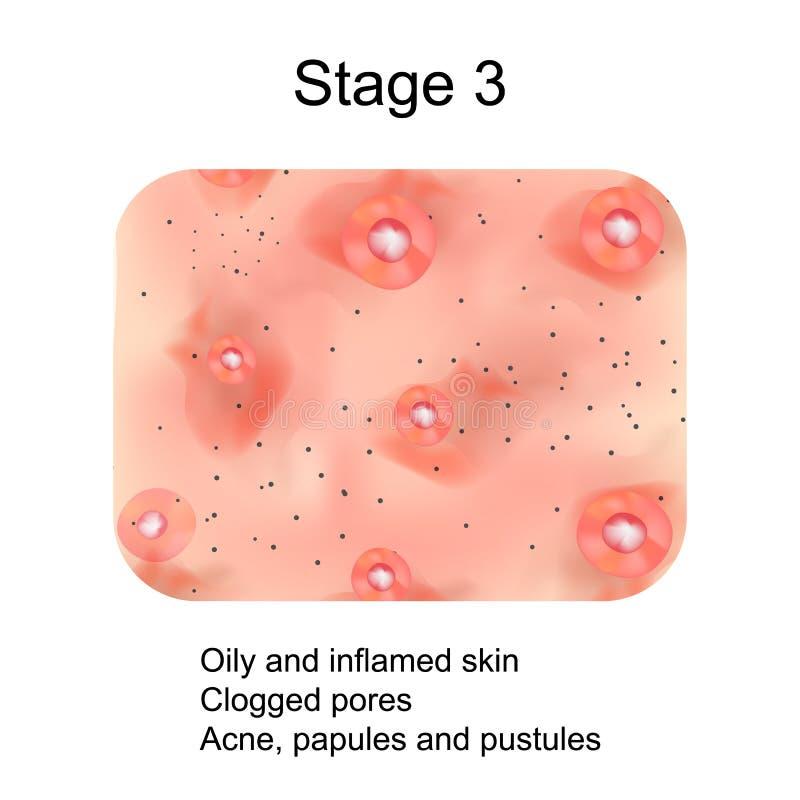 Étape 3 du développement de l'acné Peau enflammée avec les cicatrices, l'acné et les boutons La texture de la peau enflammée, et  illustration de vecteur
